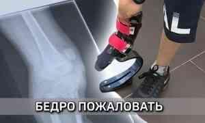 Архангельские специалисты изготовили модульный спортивный протез бедра