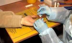 На20 процентов загод сократилось количество ВИЧ-инфицированных врегионе