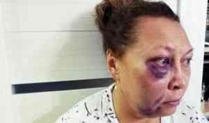 В Архангельске возобновлено уголовное дело против полицейского, ударившего пенсионерку