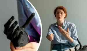 У киберруки за 3 миллиона отказали пальцы: как девушка из Архангельска добивается ремонта протеза