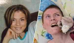 Умерла пострадавшая при пожаре клуба «Хромая лошадь». Она боролась за жизнь 11 лет